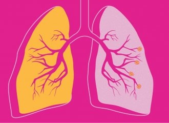 cbd bronchitis